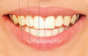 Tooth axis