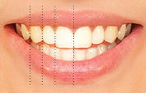 Relative tooth dimension and proportion