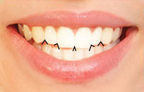 Interincisal Angles