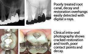 Digital X-Rays and Intra-Oral Photography