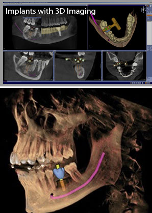 Implants with and without 3D imaging